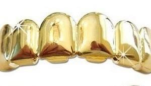 Custom Gold Grillz Top Set