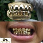 6 on 8 gold grillz