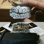 Full Custom Grillz