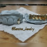 Custom eight gold teeth