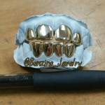Custom Gold Grillz Images