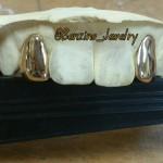 2 gold teeth