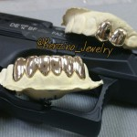 Custom 14K Gold Teeth