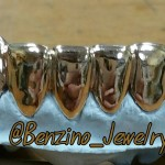 Custom Gold Teeth grill