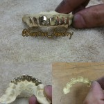 Custom Gold Teeth