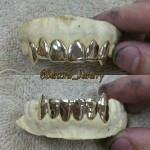 10K 6 on 6 Gold teeth w/Fangz