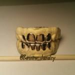 Custom Gold Teeth grillz
