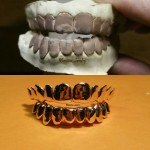 yellow gold grillz