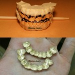 bottom gold grillz